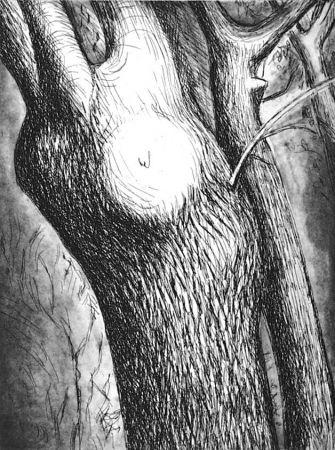 Eau-Forte Et Aquatinte Moore - Trees VI dead ash